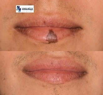 macula melanotica labial
