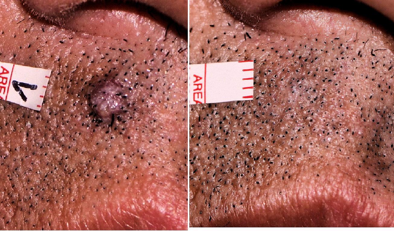 Láser diodo 980 en la eliminación de verrugas