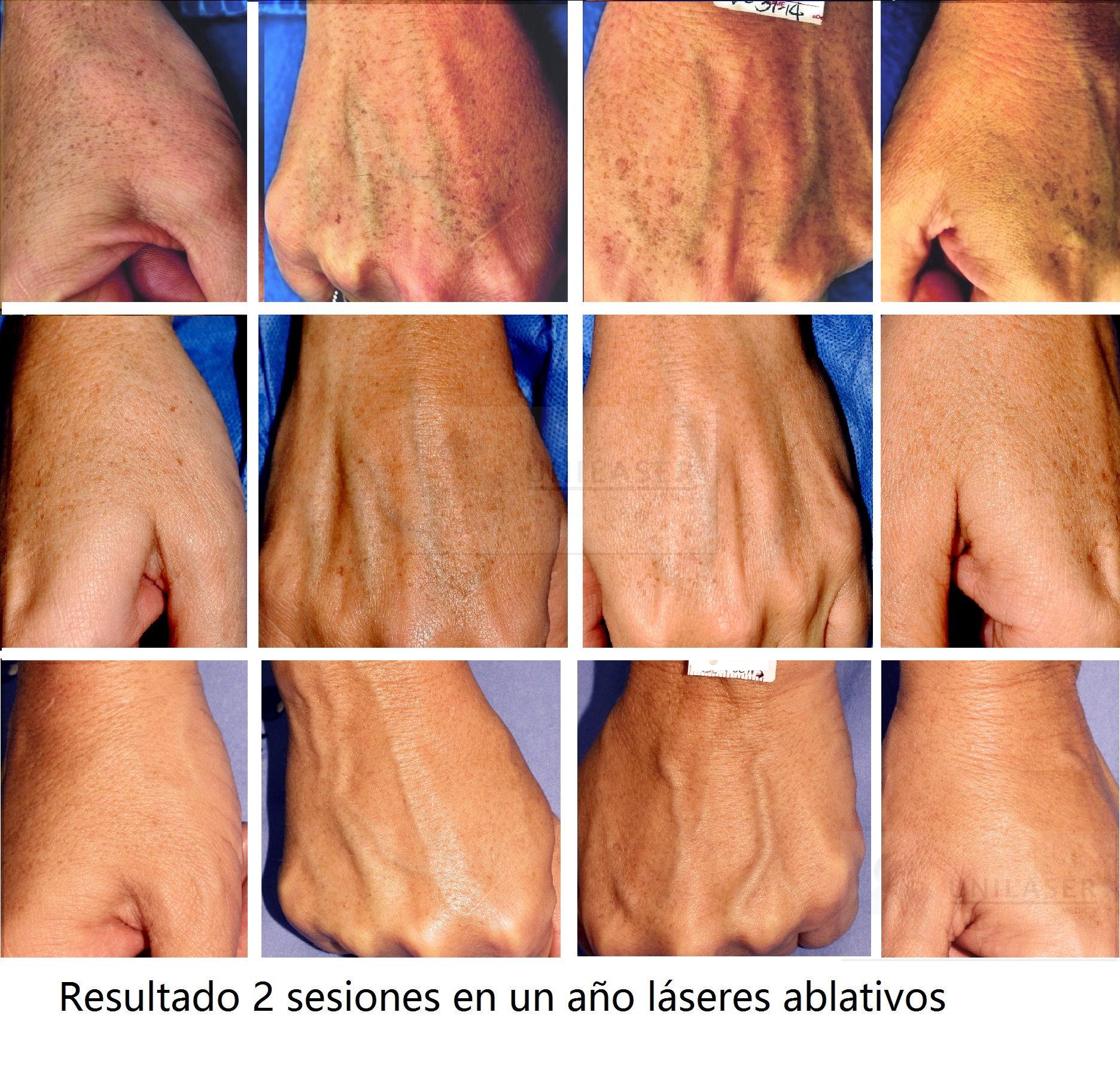 Láser para la piel del dorso de las manos