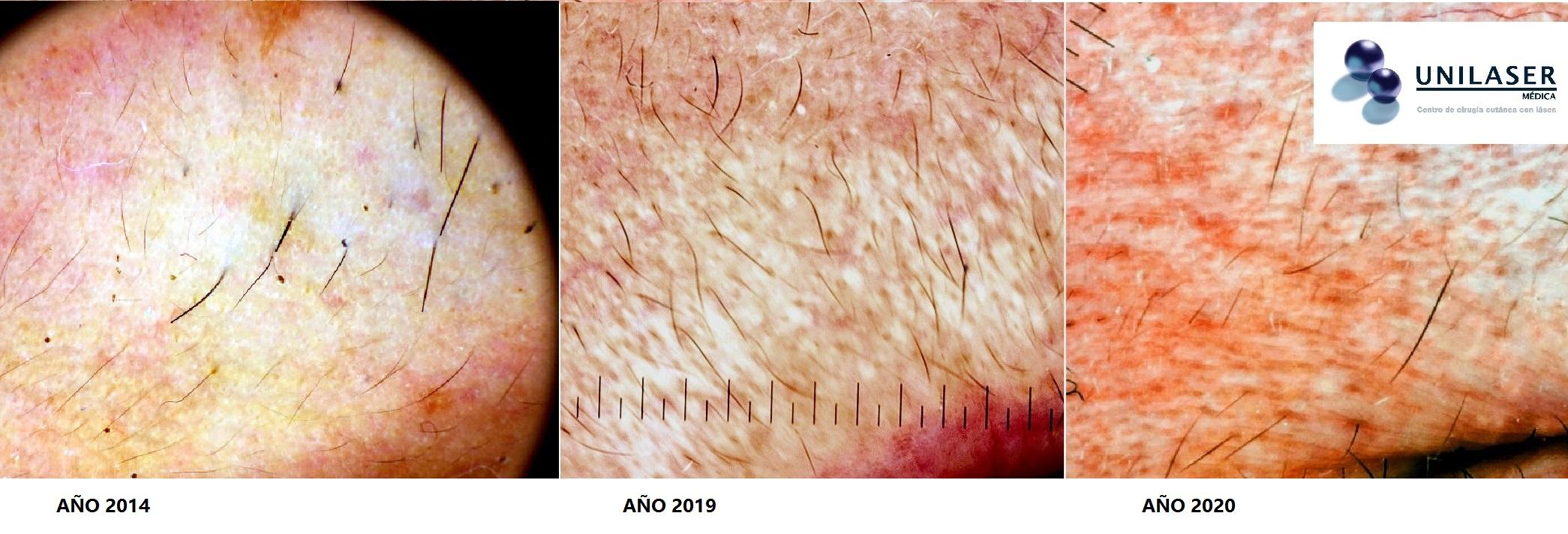 Resultados tratamiento láser Primelase y Candela 755