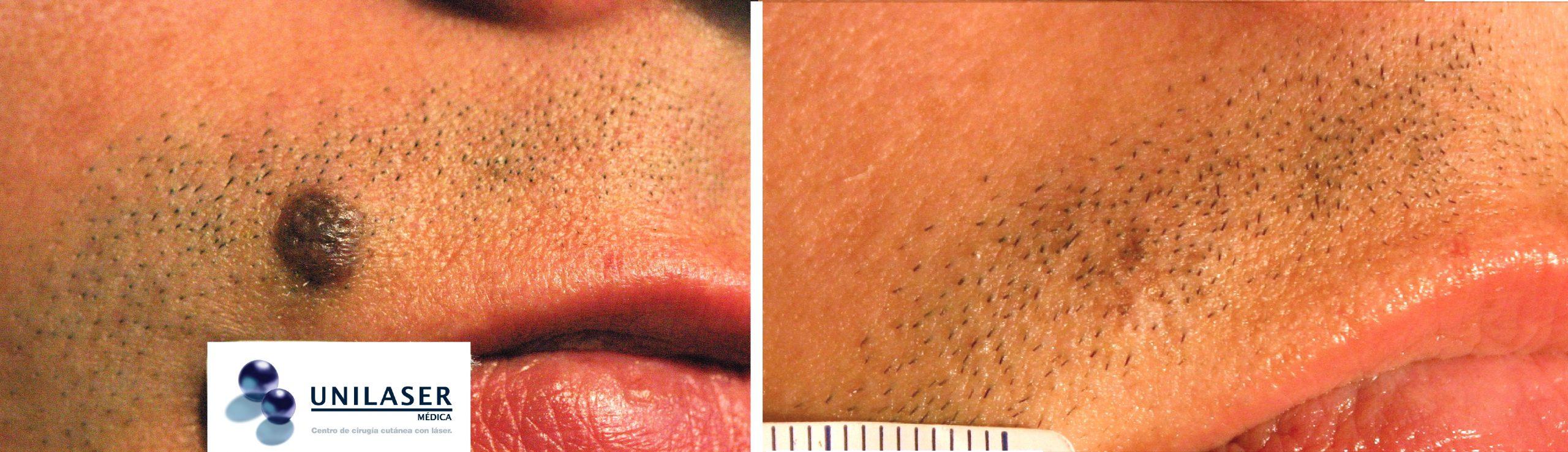 Nevus del labio superior tratado con láser