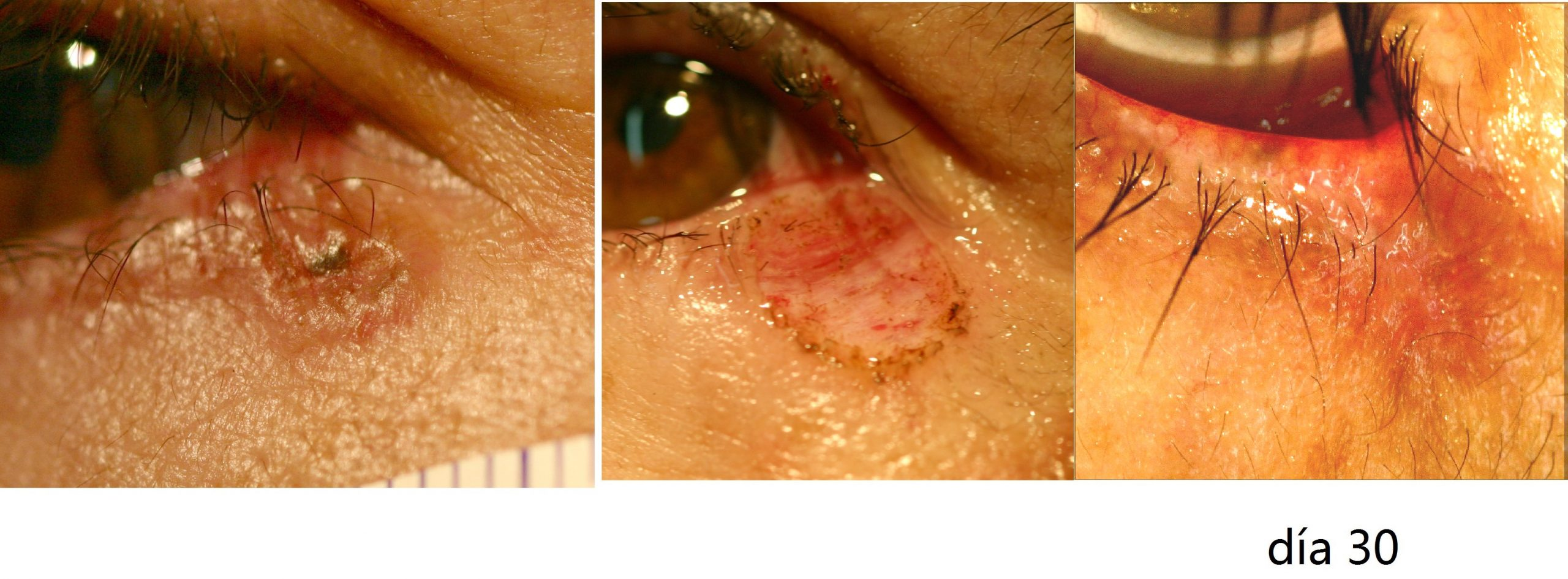 Biopsia carcinoma basocelular