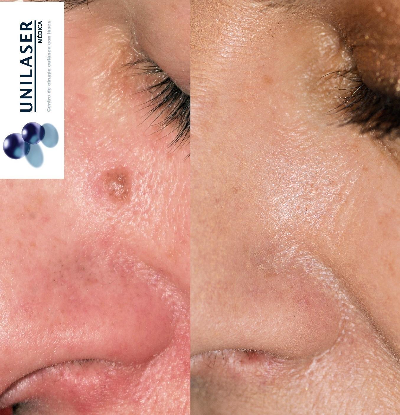 Nevus de la vertiente nasal tratado con láser