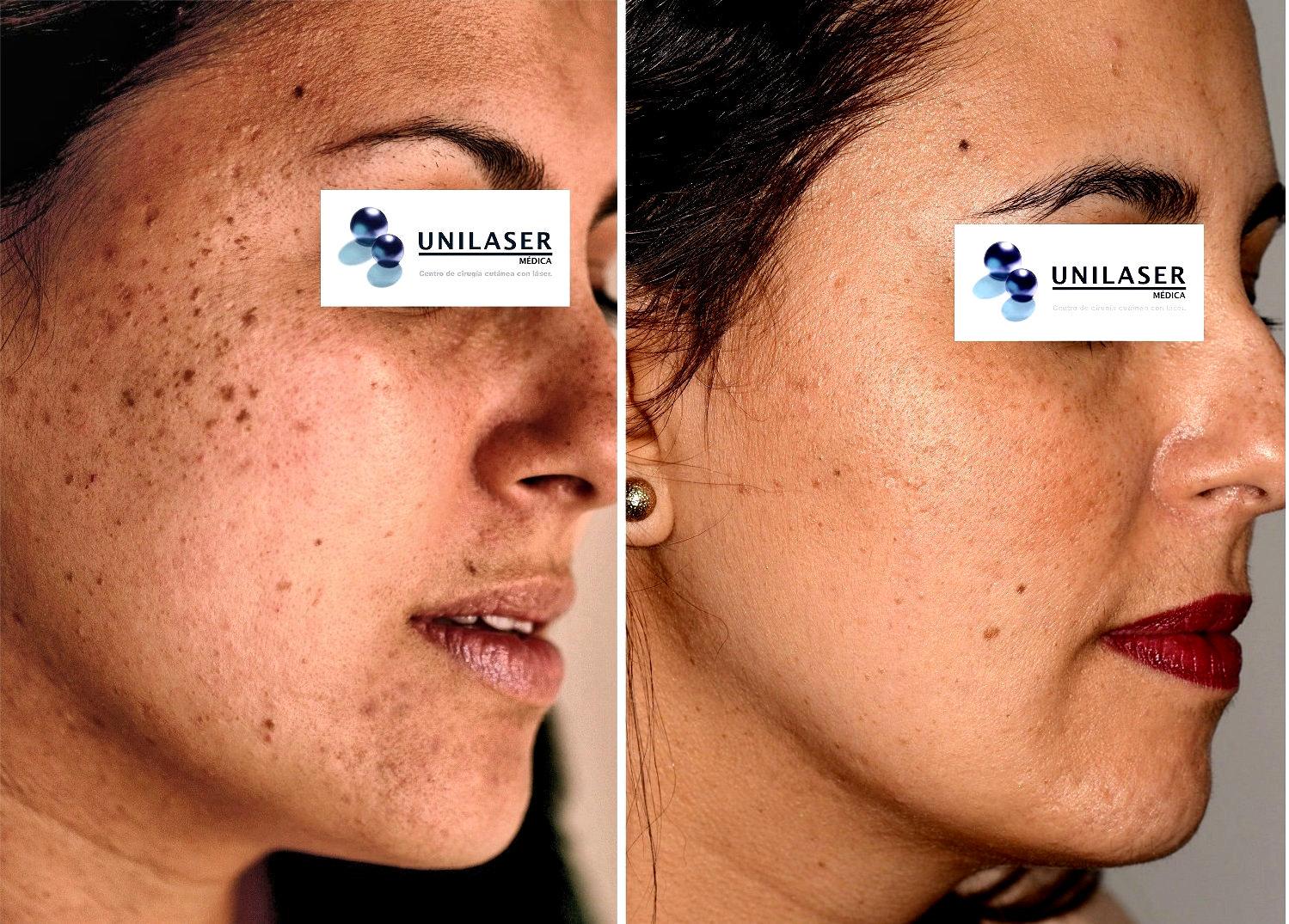 Tratamiento láser de queratosis seborreica en la cara