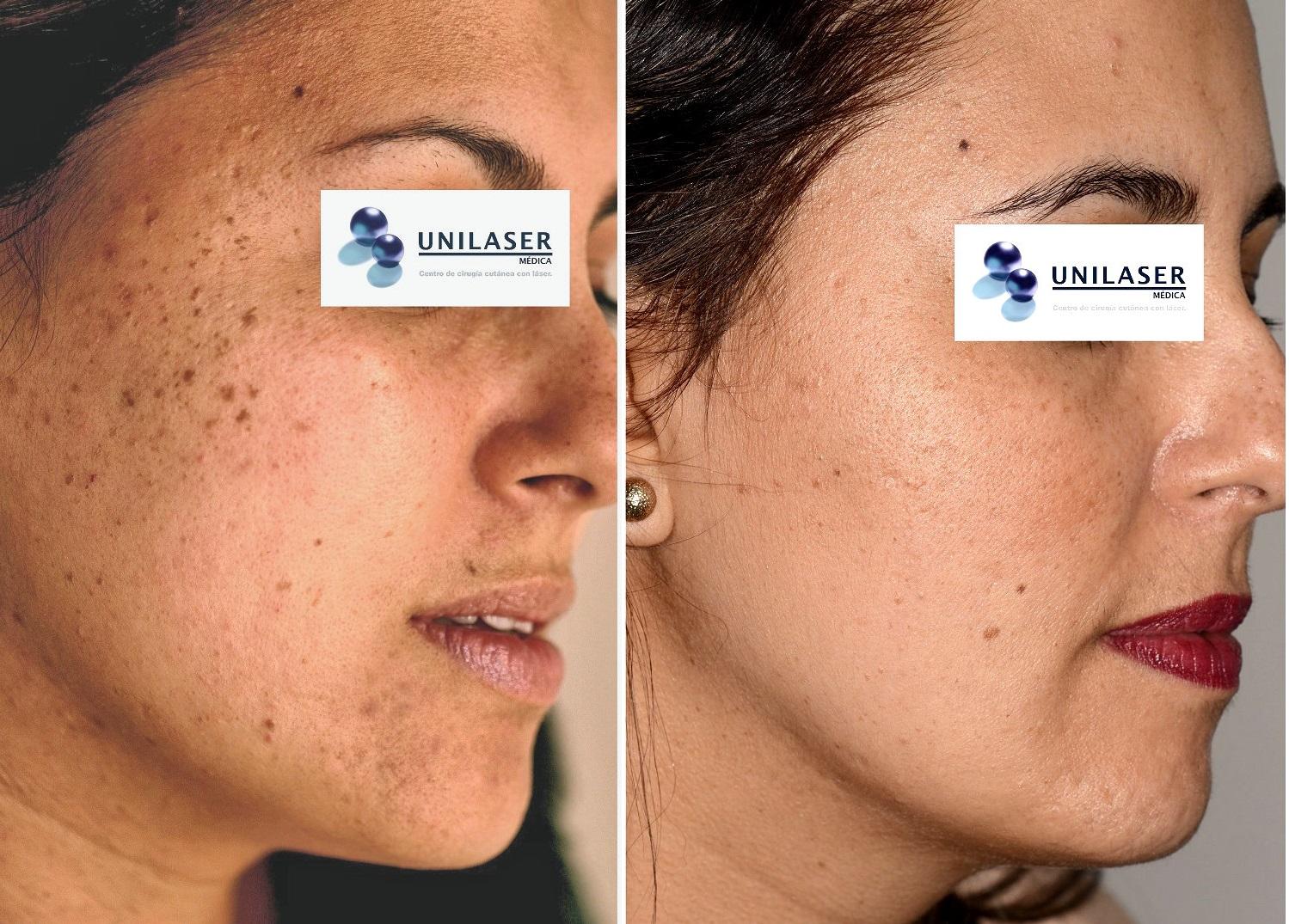 Queratosis seborreica miliar de la cara tratada con láser