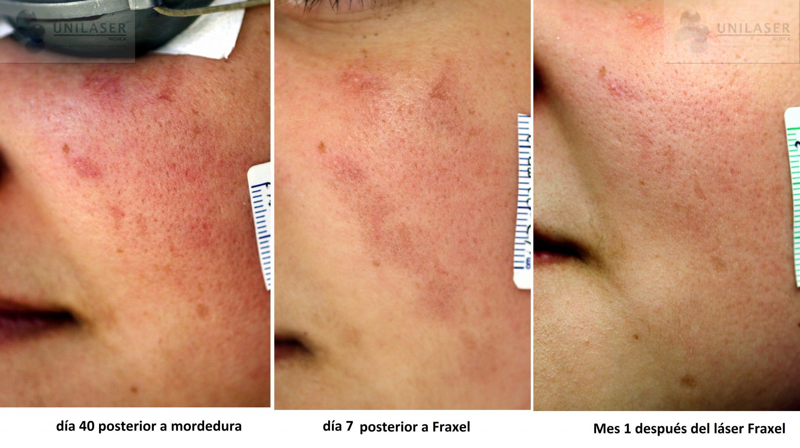 eliminacion de cicatrices con laser bogota
