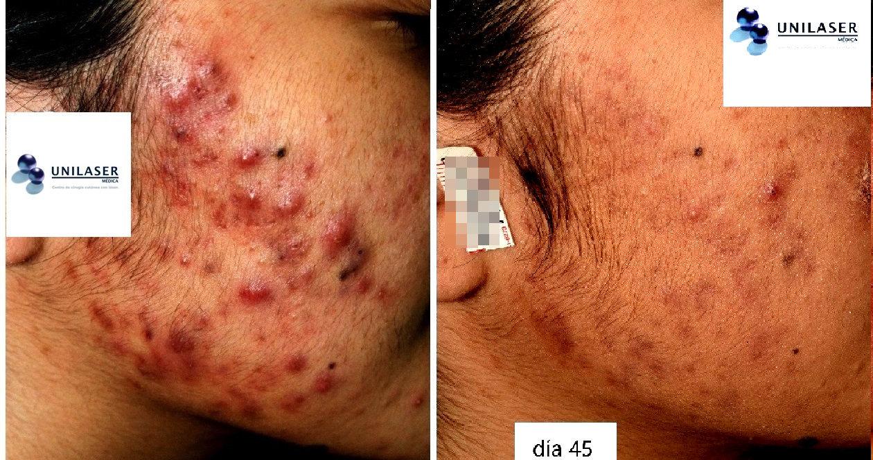 Drenaje de nódulos y pústulas del acné activo asistido con láser