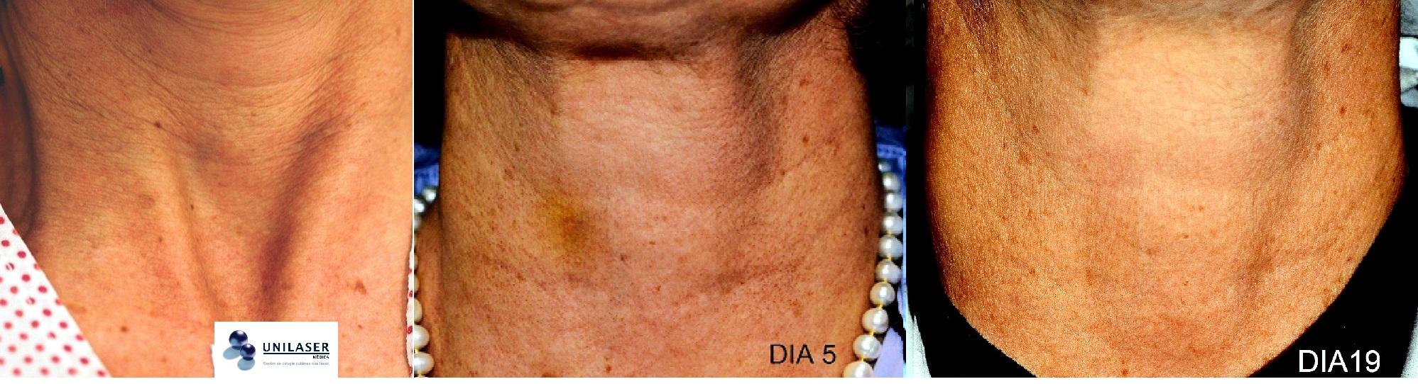 Tratamiento combinado rellenos y Fraxel para ritidosis del cuello