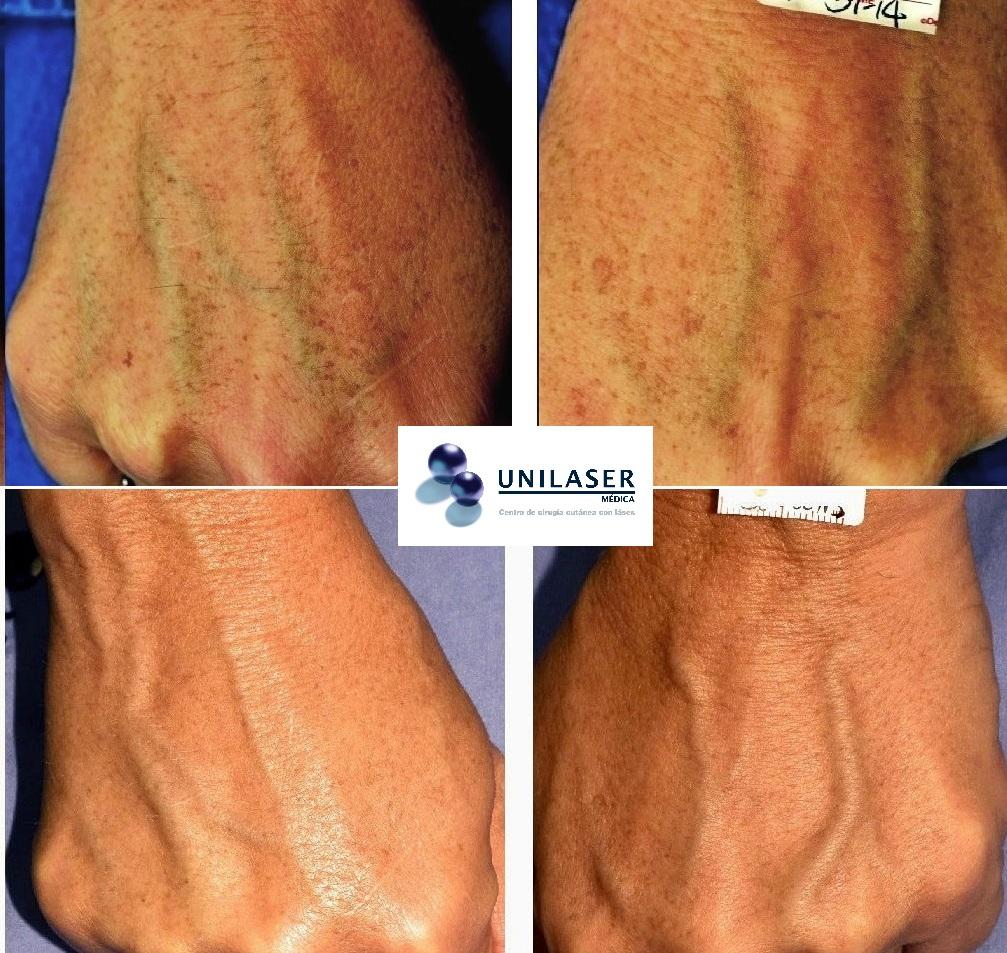 Envejecimiento del dorso de las manos tratado con láser