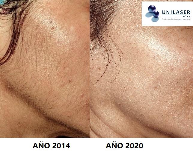 Resultados tratamiento depilación de la cara con Primelase, Candela y depilación eléctrica