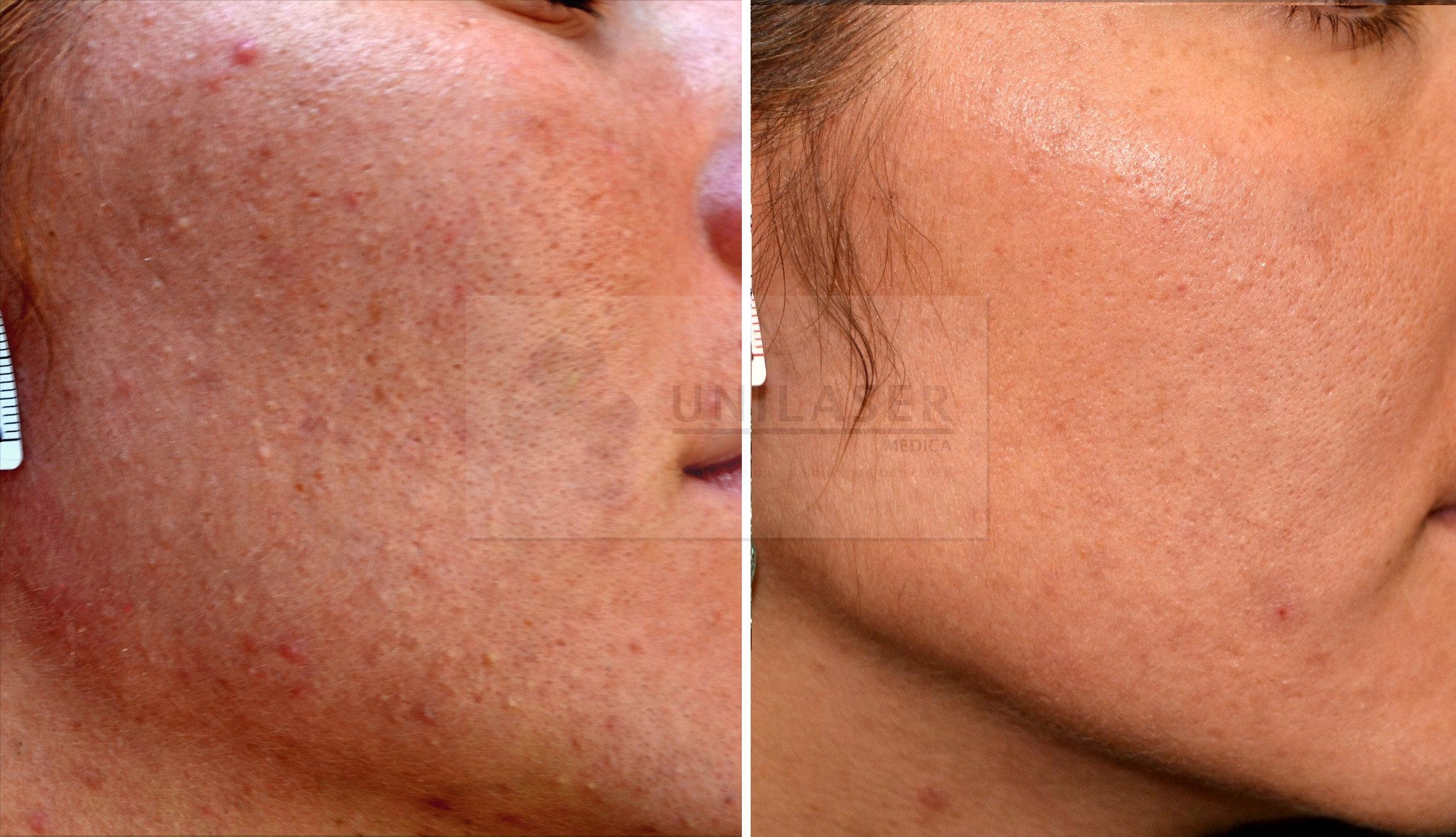 tratamiento del acné tipo comedoniano con láser