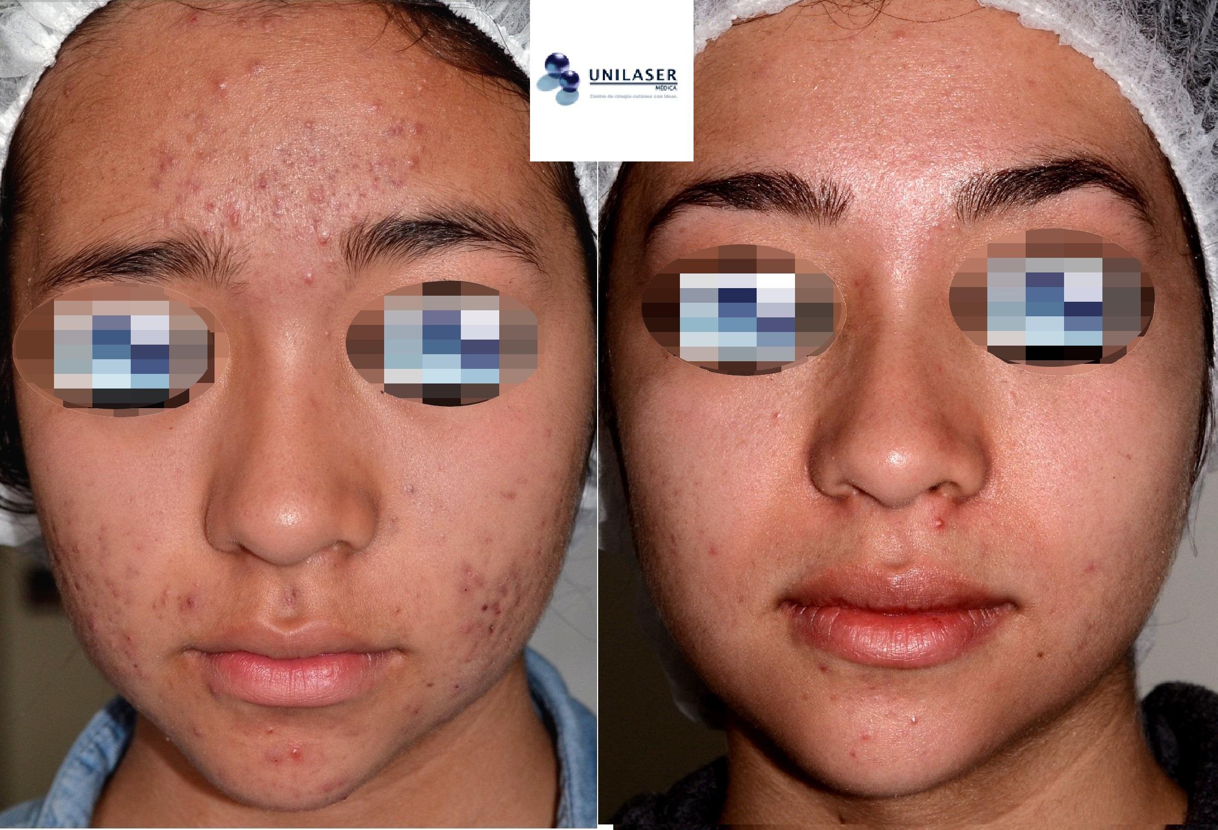 Resultado del tratamiento temprano de las cicatrices del acné y del acné activo con láser