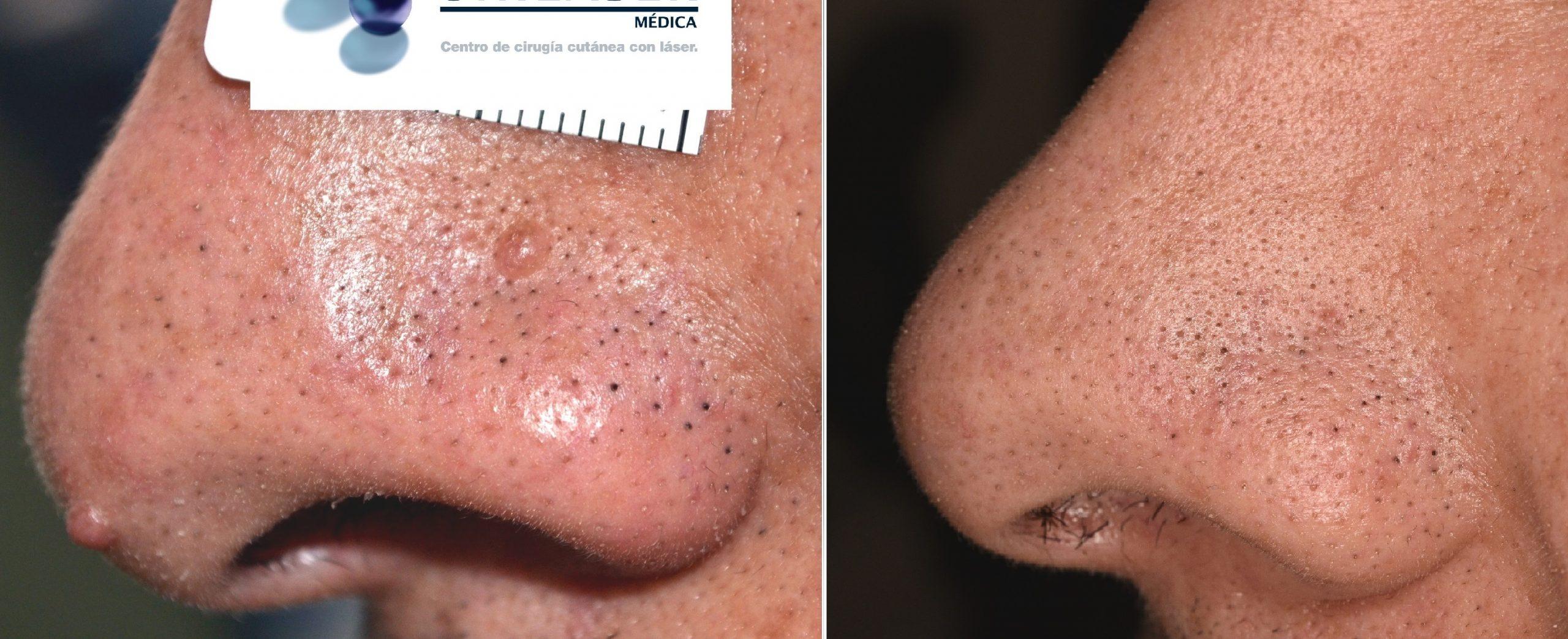 Resultados a 5 años posterior a vaporización de pápula fibrosas del ala nasal