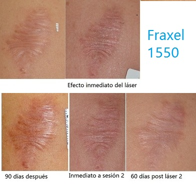 laser fraxel cicatrices