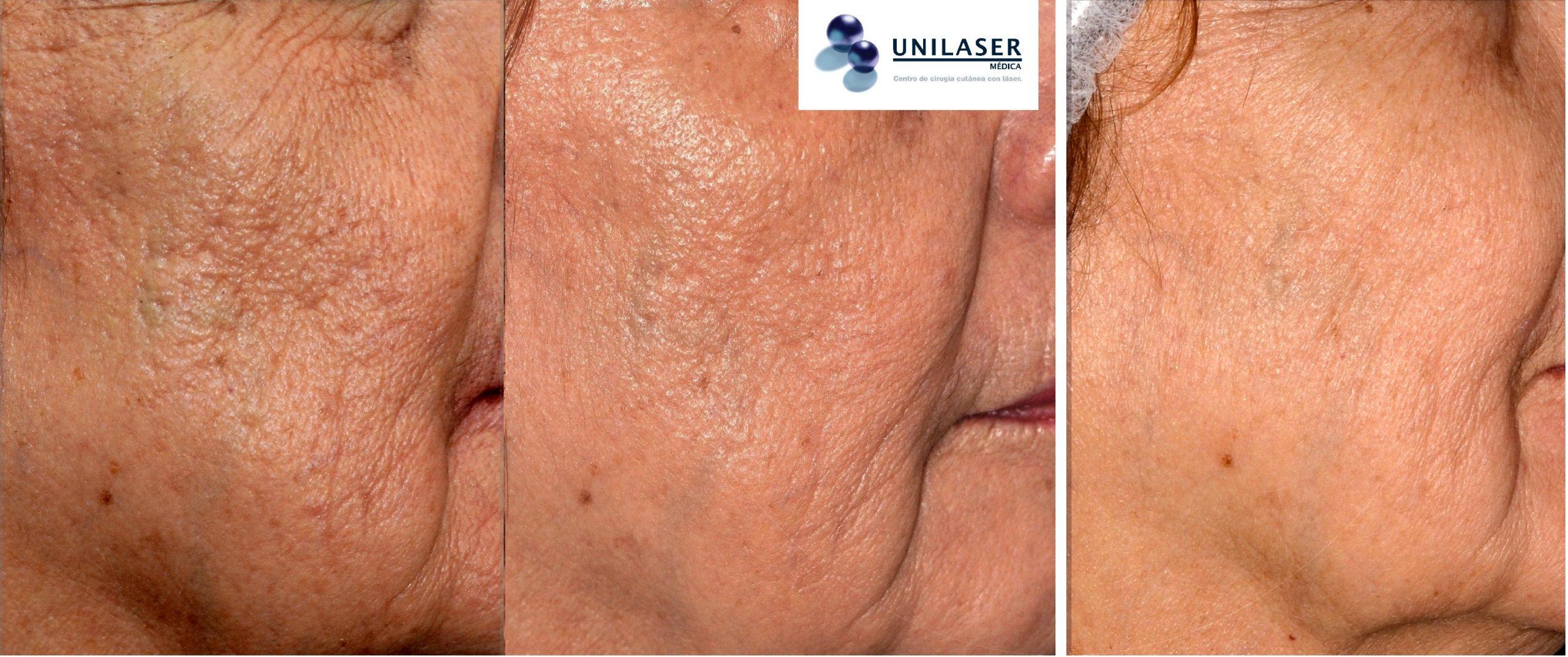 Tratamiento secuencial de las arrugas con láser