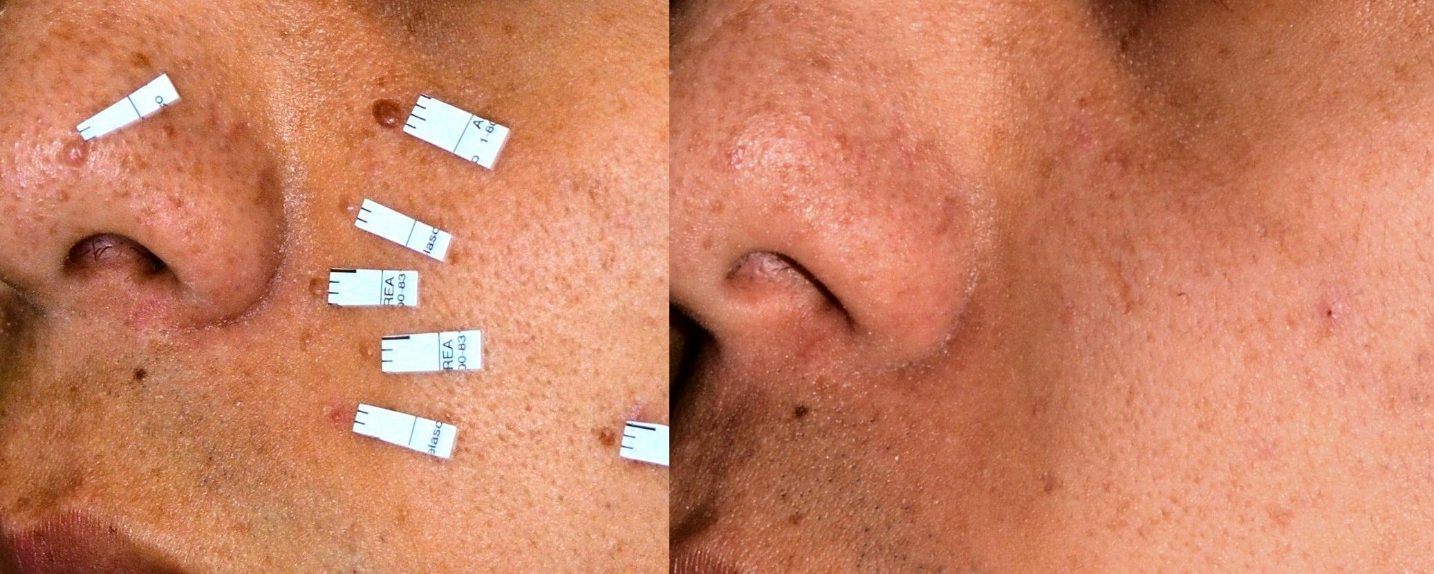 Múltiples pápulas fibrosas de la cara de localización nasal y paranasal