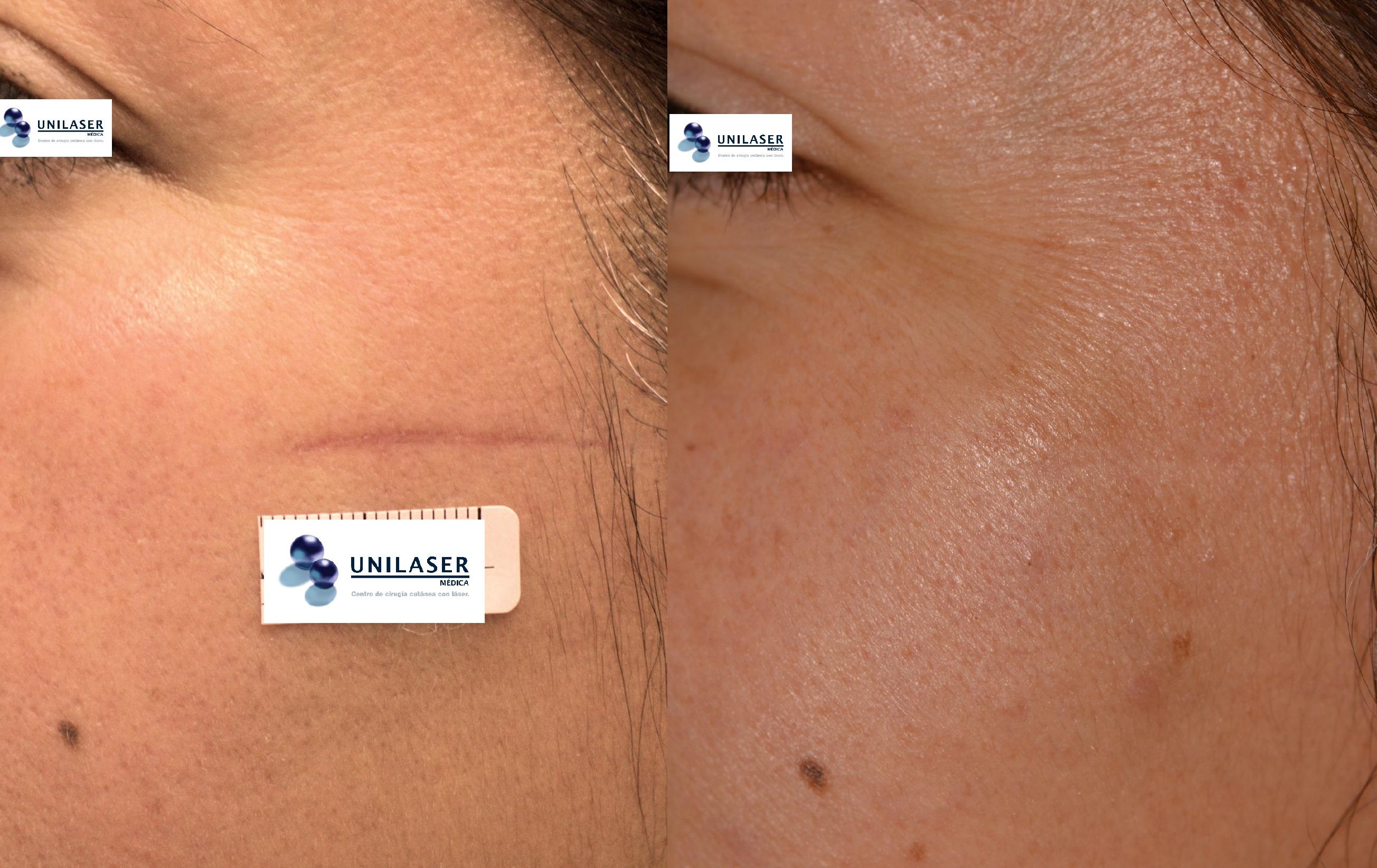 Nivelación de cicatriz inmadura con Fraxel