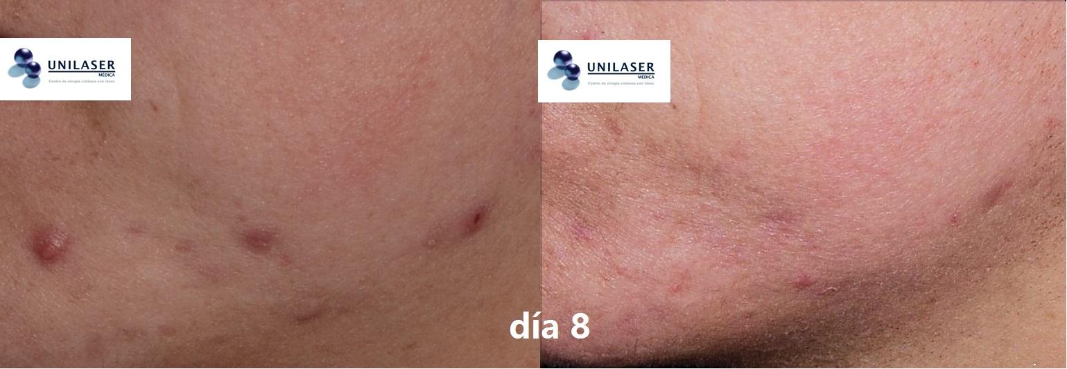 Resultado de comedolisis de pústulas asistida con láser Erbio-YAG