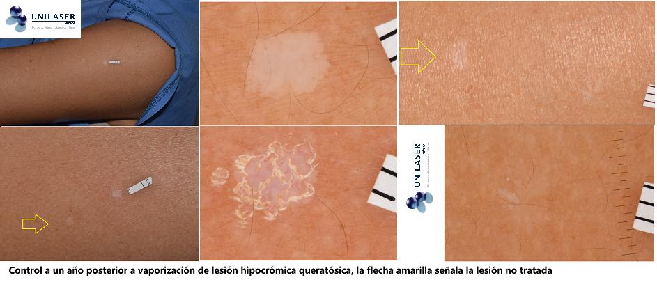 Cambios hipocrómicos de la piel