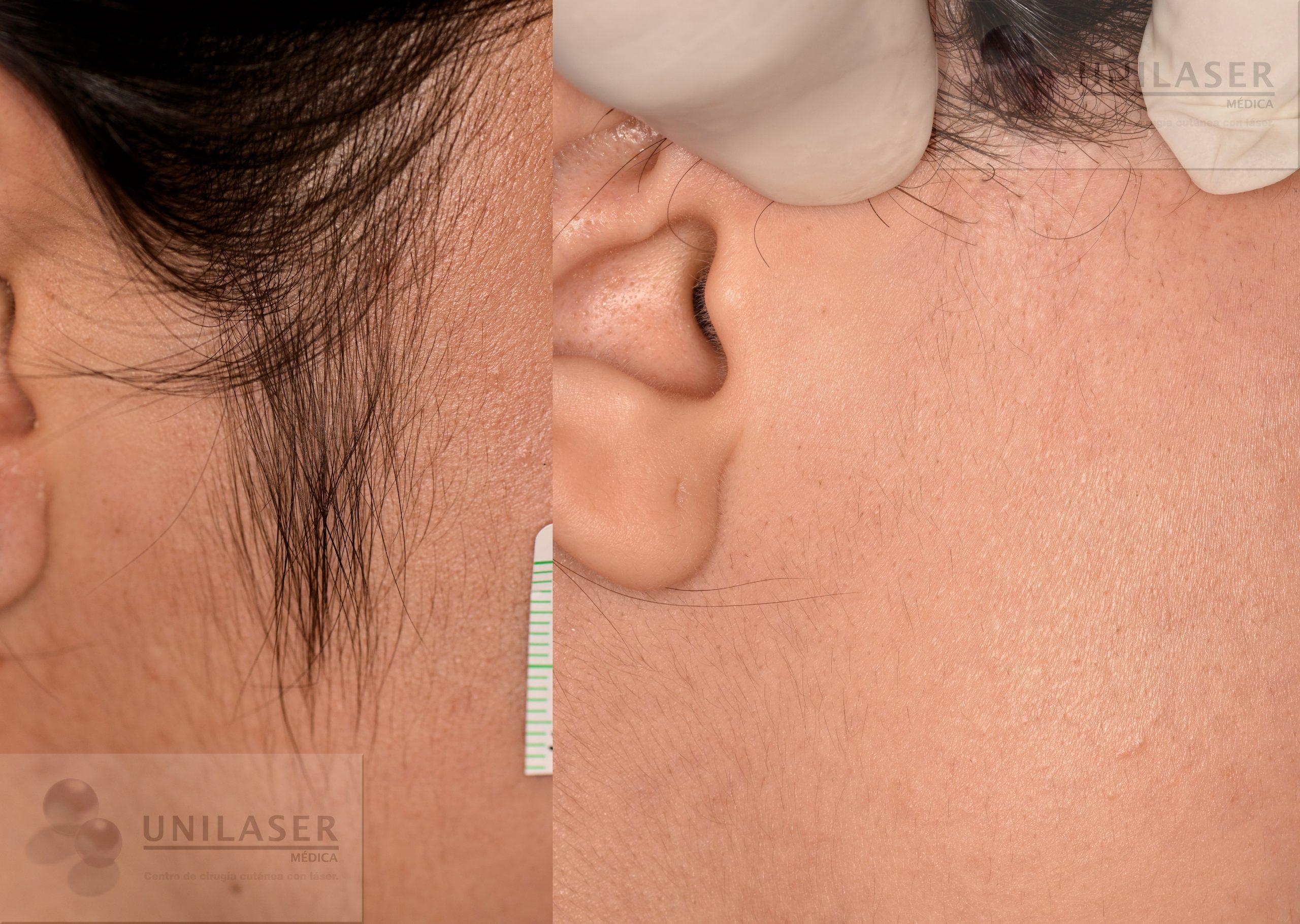 Qué tan efectiva es la depilación eléctrica