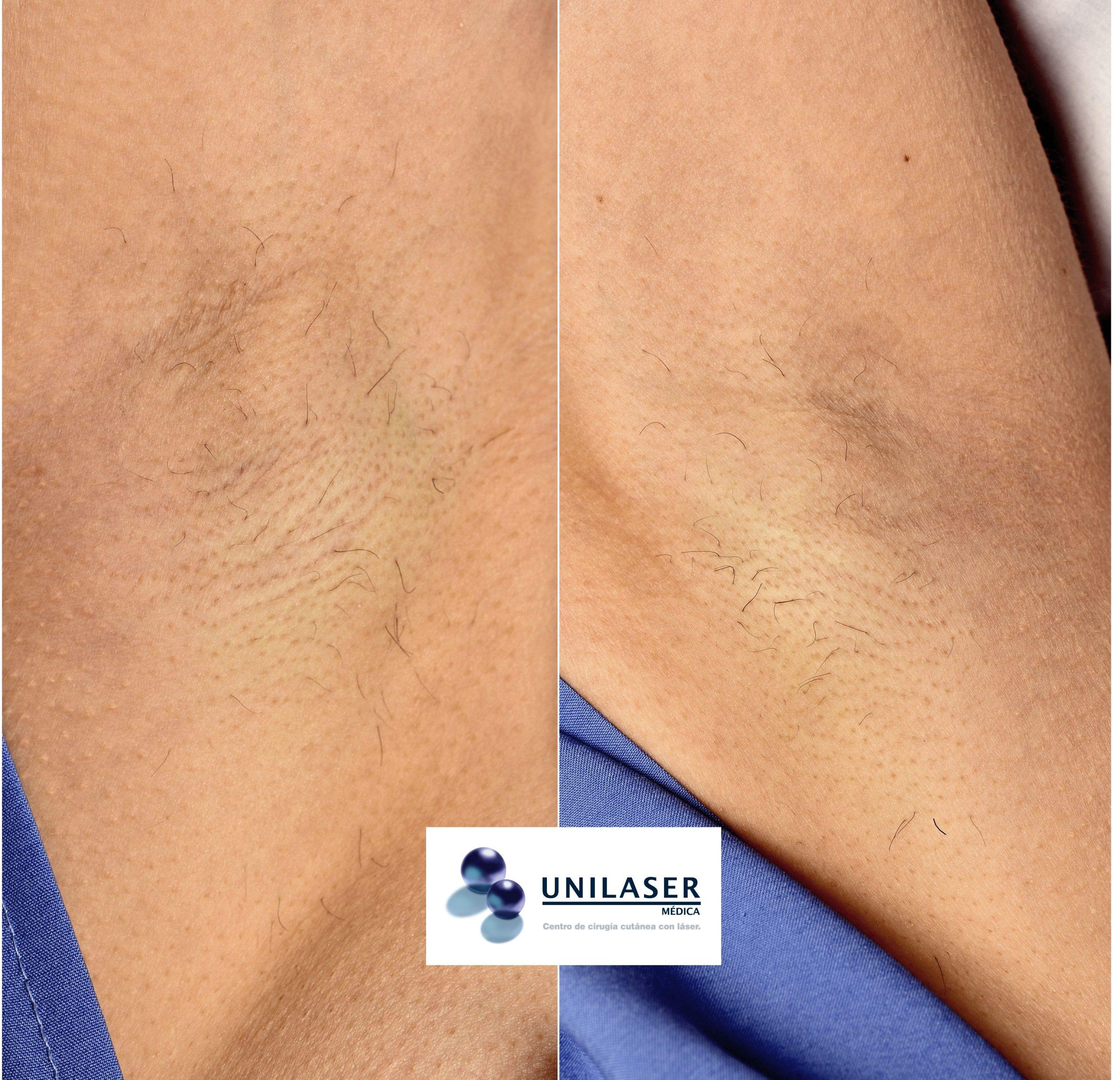 Disminución notoria de pelo denso y grueso con el diodo láser Primelase