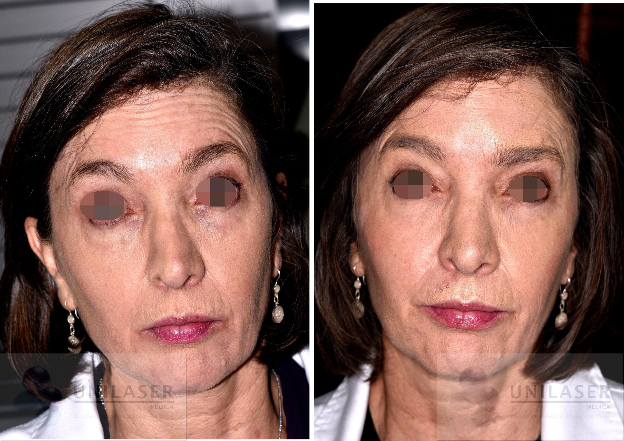 Tratamiento de arrugas con toxina botulínica