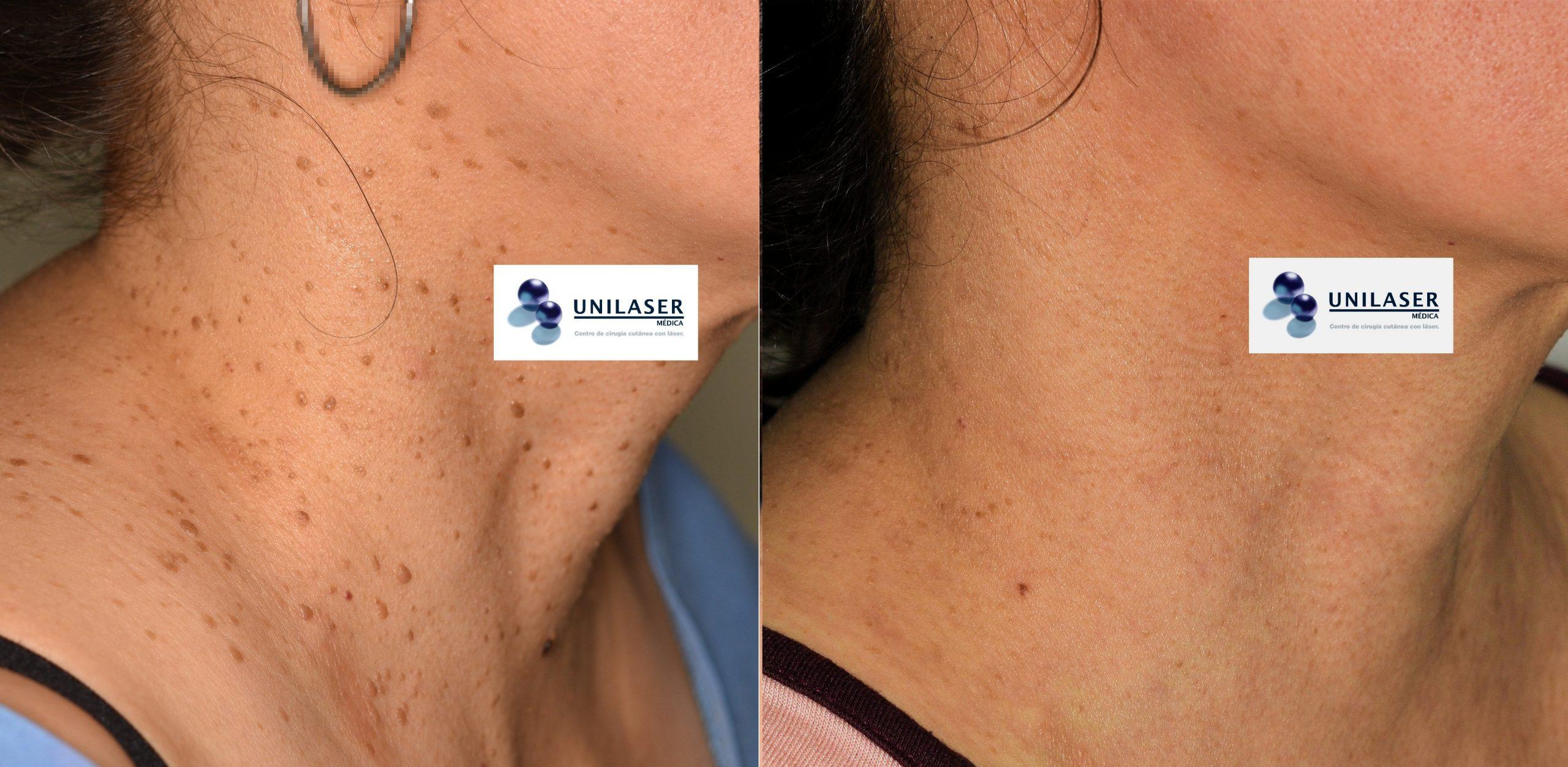 Queratosis seborreica extensa del cuello tratada con láser