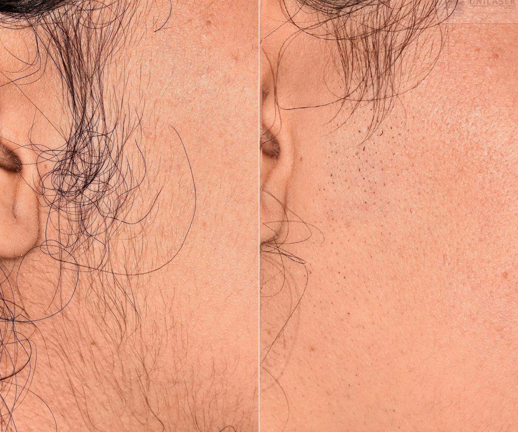 Antes y Después Depilación de la cara primera sesión