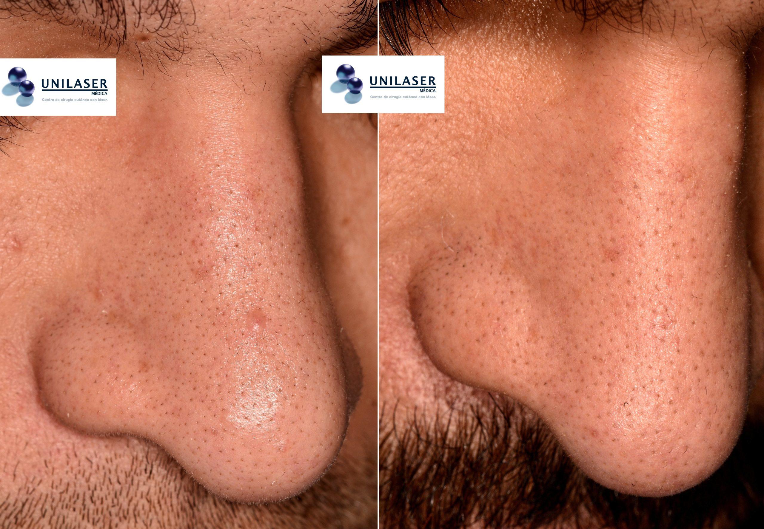 Resultado a 10 meses vaporización con láser Erbio-YAG pápula fibrosa del ala nasal