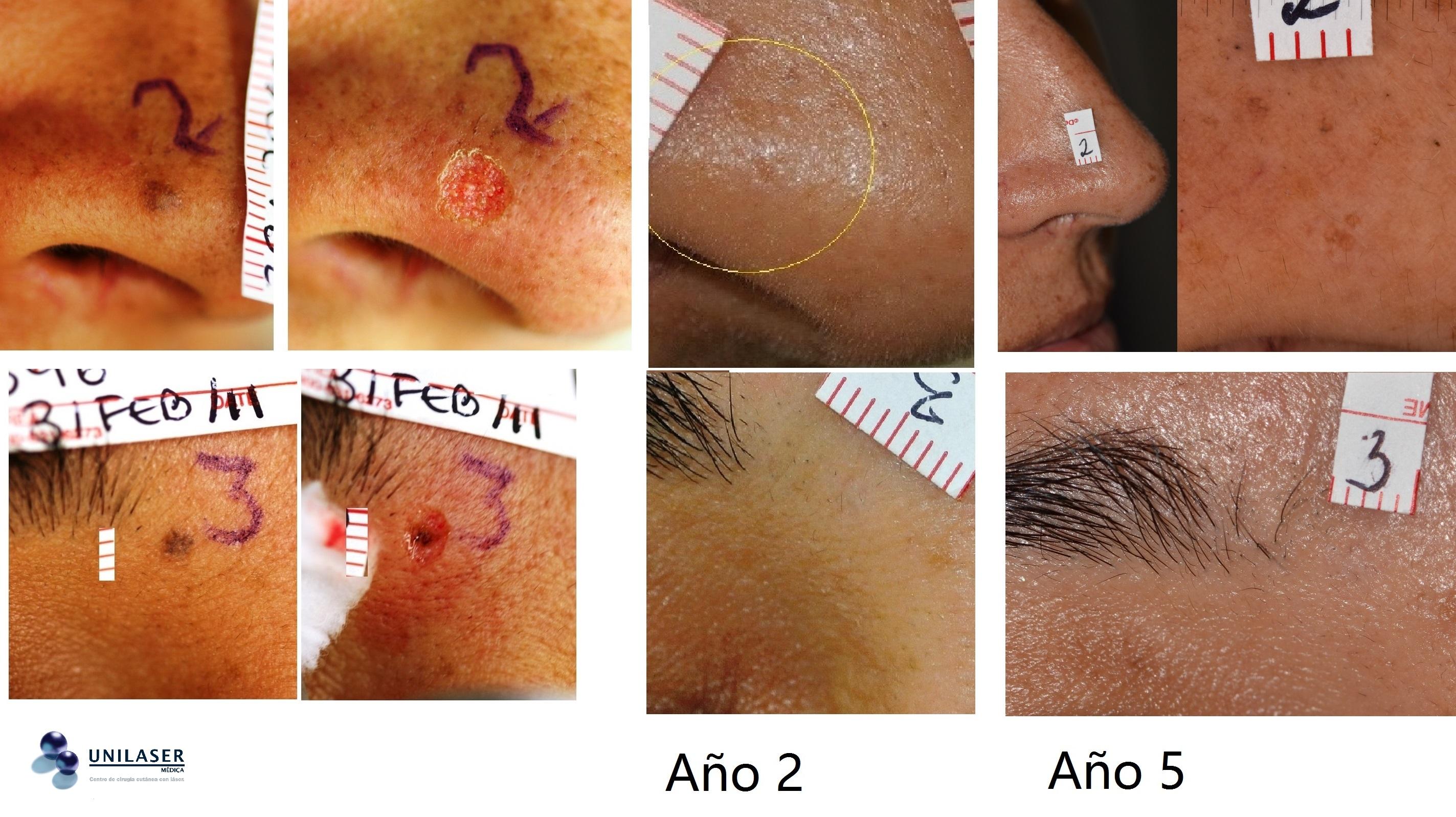Vaporización simultánea de lunares del ala nasal y del párpado superior, resultados a 2 y 5 años