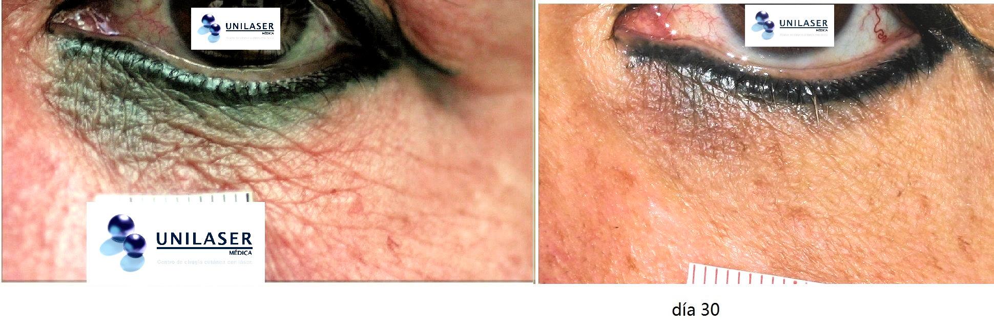 Tratamiento con láser de escurrimiento de tinta provocado por tatuaje cosmético