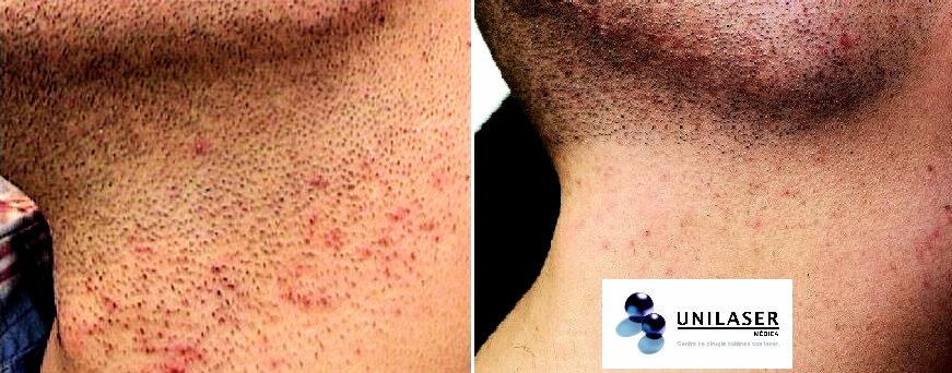 Depilación de la barba