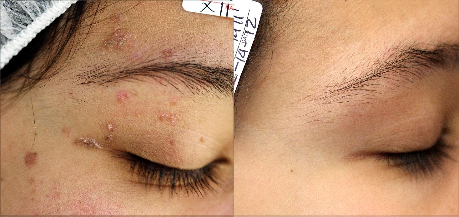 verrugas vulgares múltiples en la cara