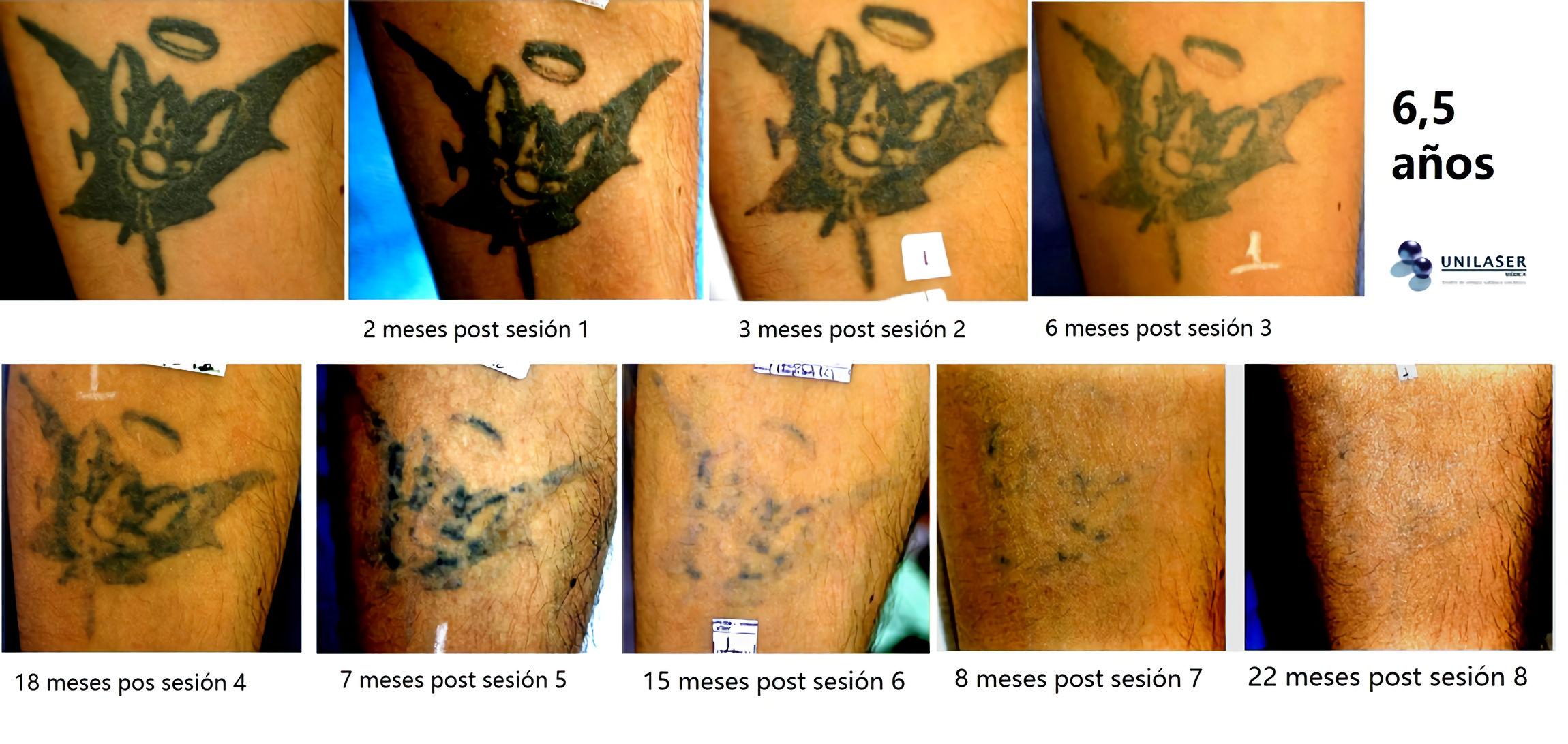 Seguimiento de tratamiento de remoción de tatuaje a 6 años y medio de 8 sesiones láser