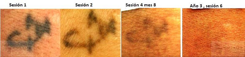 tatuajes despues del laser