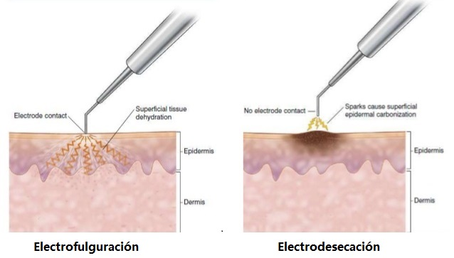 electrofulguración