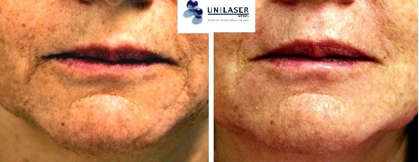 Rellenos más laser en rejuvenecimiento de los labios