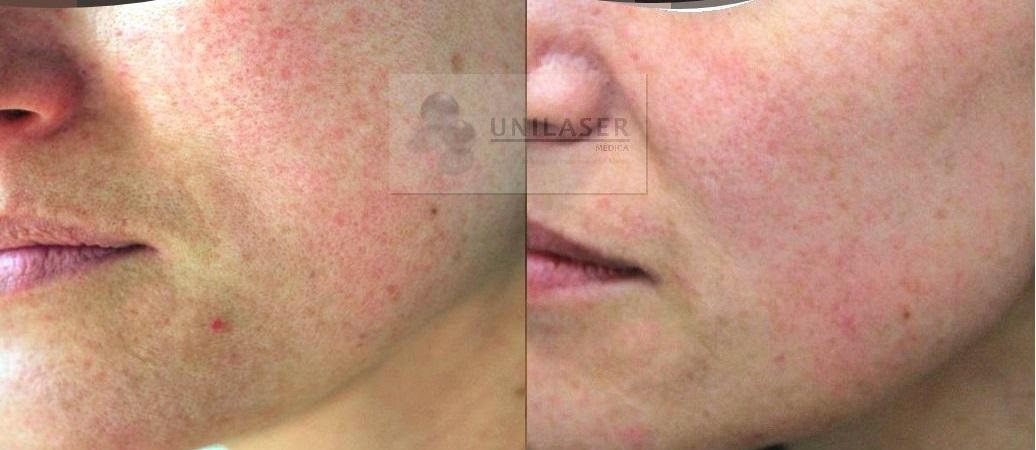 Mejoría de la textura de la piel en rejuvenecimiento laser